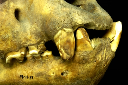 The worn and broken teeth of a maneating tiger