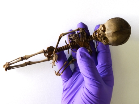 Skeleton of foetus with estimated age of 18-20 weeks