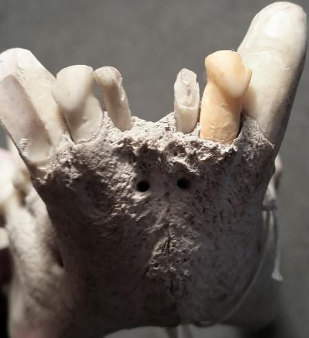 Hyena mandible
